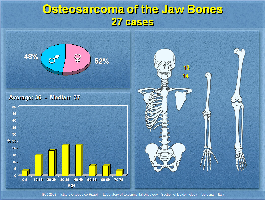 Osteosarcoma of the Jaw Bones