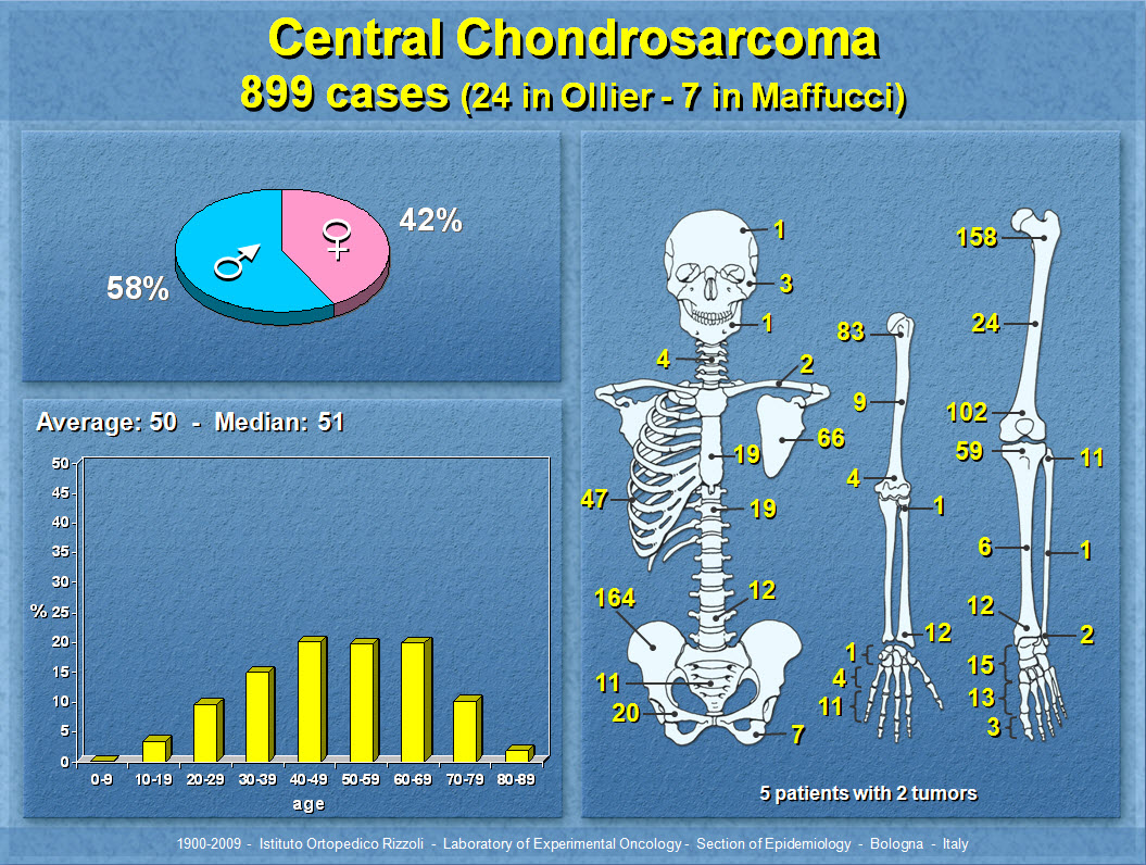 Central Chondrosarcoma