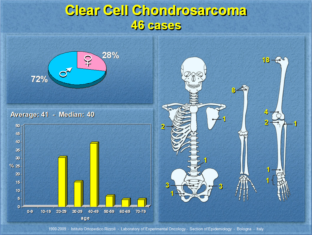 Clear Cell Chondrosarcoma