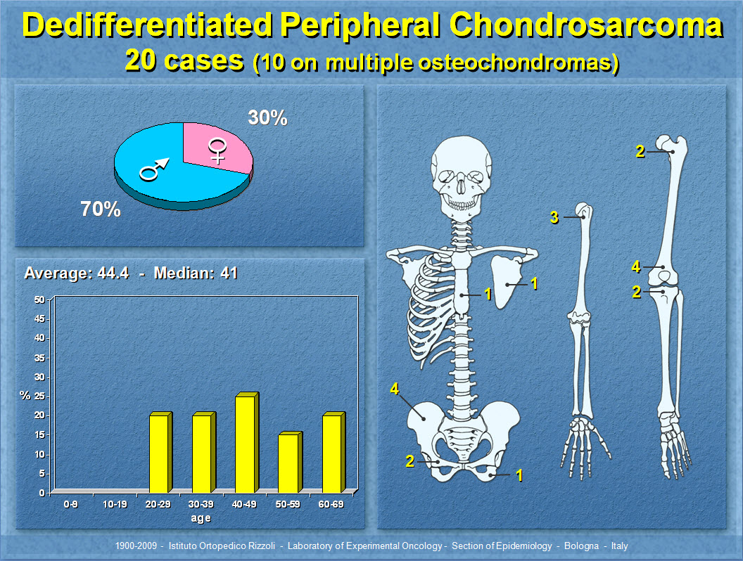 Dedifferentiated Peripheral Chondrosarcoma