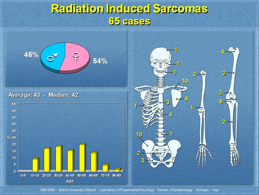 Radiation Induced Sarcomas