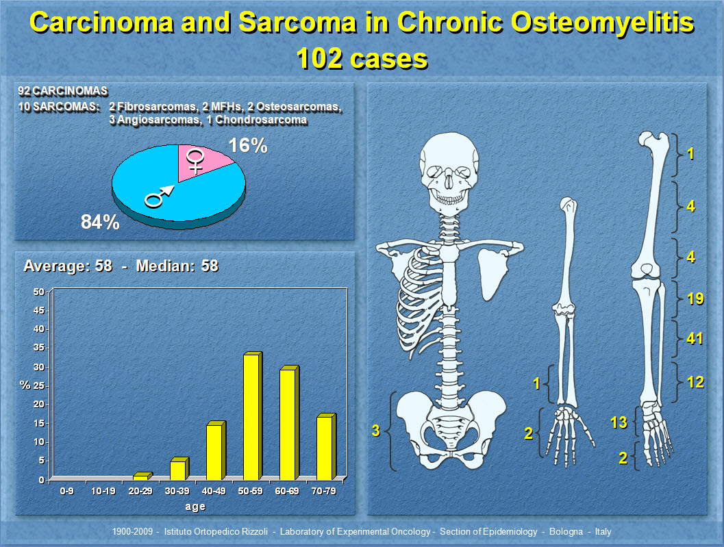 Carcinoma and Sarcoma in Chronic Osteomyelitis