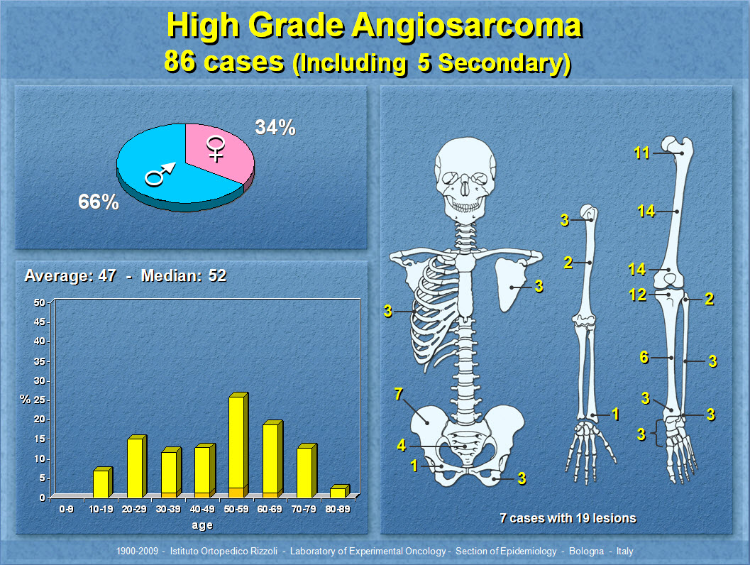 High Grade Angiosarcoma