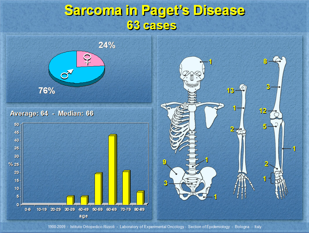 Sarcoma in Paget's Disease