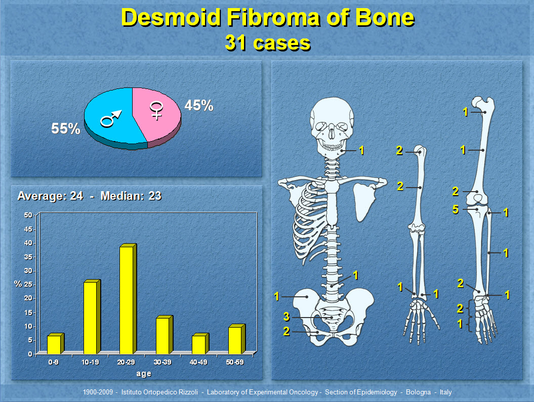 Desmoid Fibroma of Bone