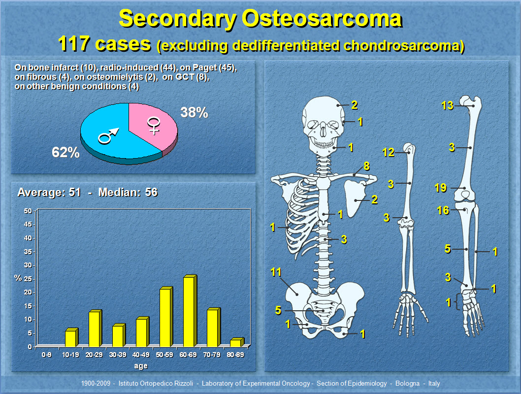 Secondary Osteosarcoma