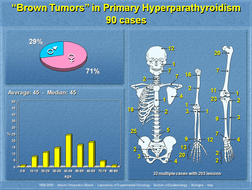 """Brown Tumors"" in Primary Hyperparathyroidism"