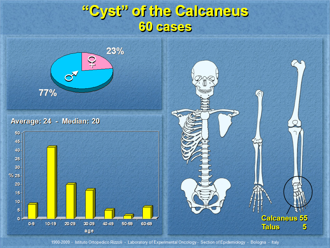 """Cyst"" of the Calcaneus"