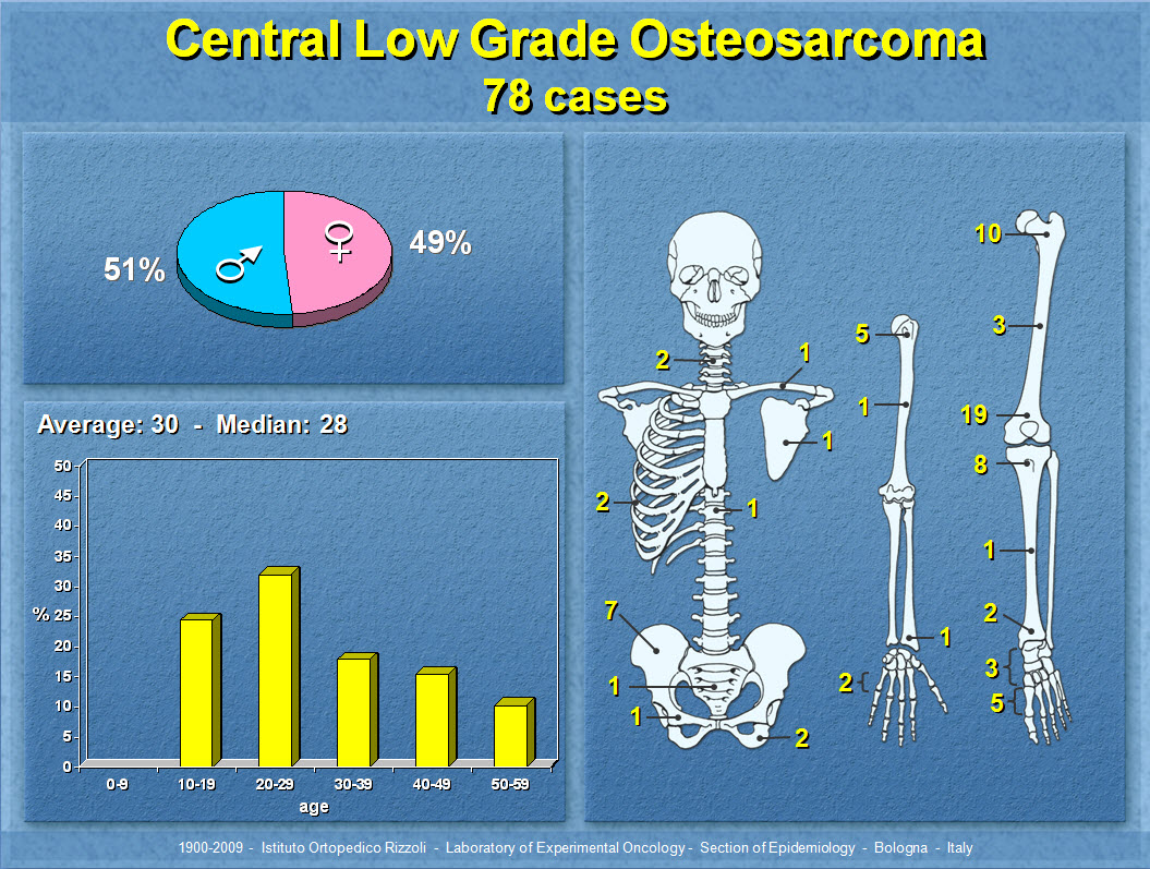 Central Low Grade Osteosarcoma