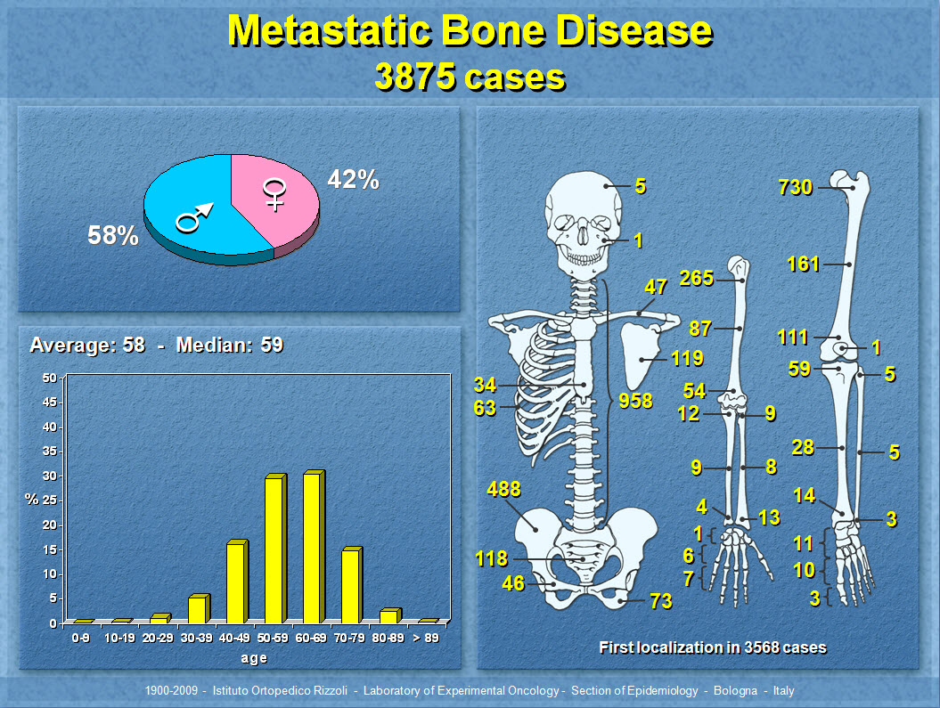 METASTATIC BONE DISEASE EBOOK