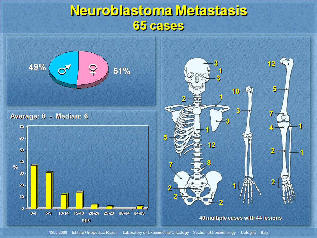Neuroblastoma Metastasis