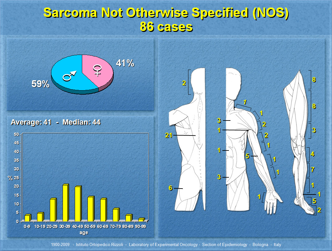Sarcoma Not Otherwise Specified (NOS)